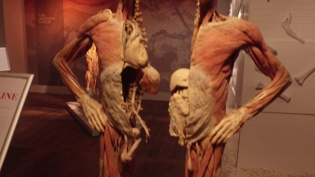 Bodi exibition, mostra di cadaveri sezionati.